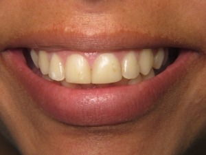 close-up of patient's teeth before treatment