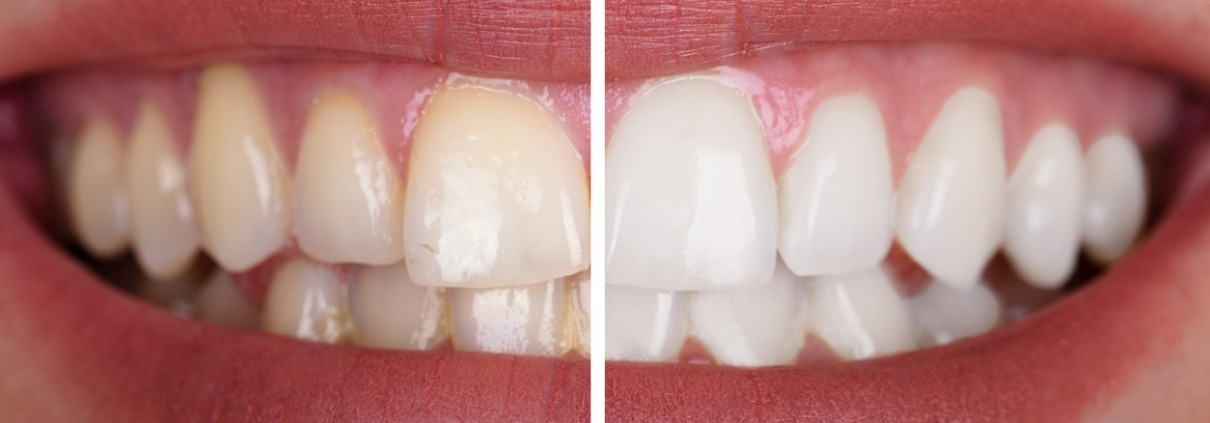 How Does Teeth Whitening Work