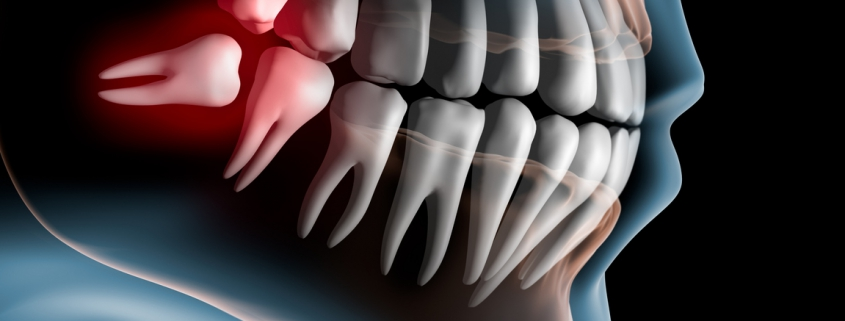 Can Misaligned Teeth Cause Chipping?