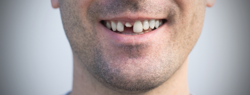 What Are My Options if I Lose A Tooth?