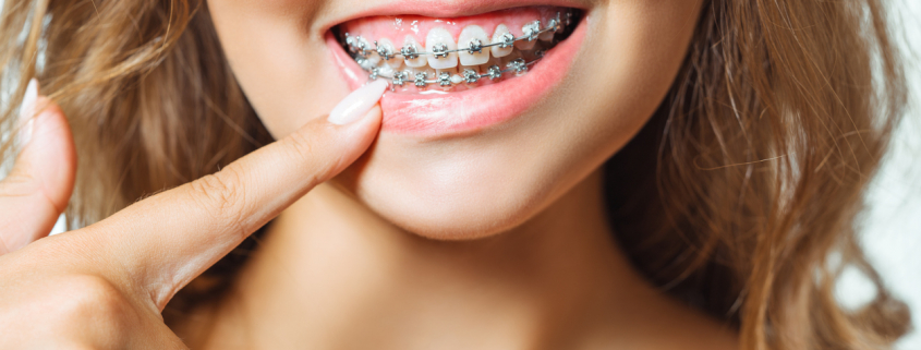 Best Tips to Keep Your Braces Clean