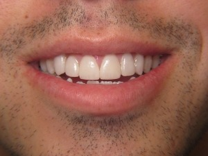 close-up of patient's teeth after treatment