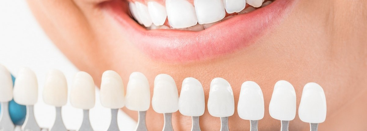 veneers being held up to compare to female patient's teeth
