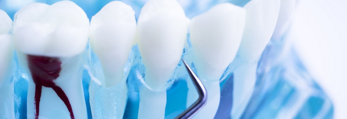 close-up of teeth being cleaned with a dental pick