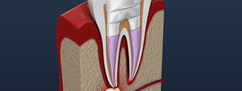 How Can Root Canal Surgery Save Your Tooth?