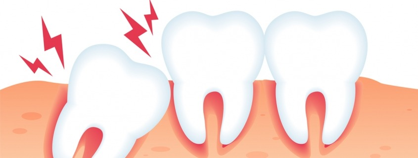 Common Dental Care Mistakes You Should Avoid