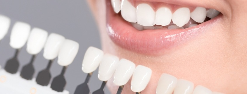 Teeth Discoloration: Causes And Treatments