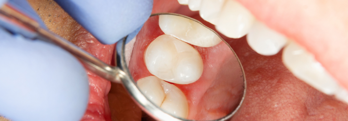 How to Take Care of Your Root Canal Post Surgery